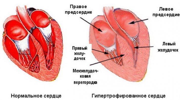 Схема гипертрофированного сердца
