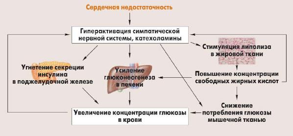 Схема сердечной недостаточности