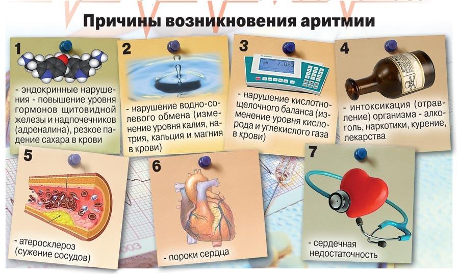 Причины возникновения аритмии
