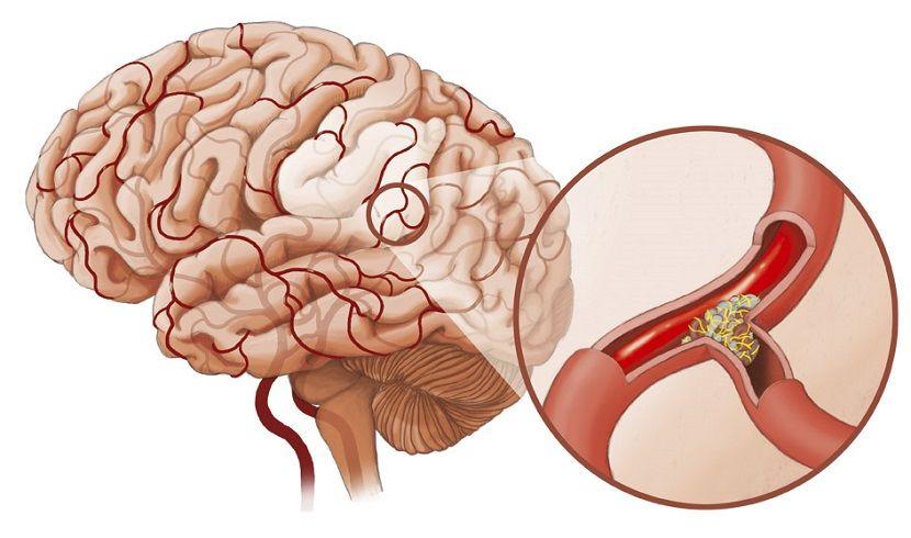 Атеросклероз сосудов мозга