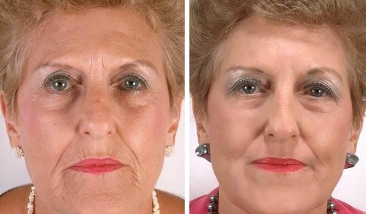 Бета-каротин обеспечивает хорошее зрение и устраняет морщины