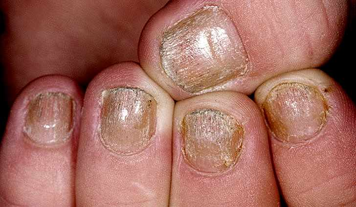 Болезнь псориаз поражает не только кожу