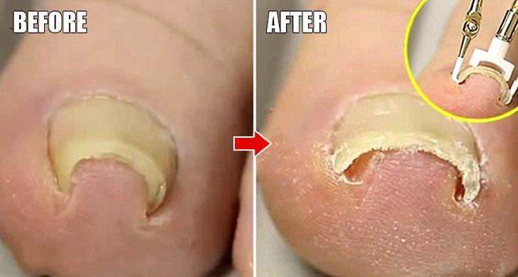 Что делать если врастает ноготь на большом пальце ноги