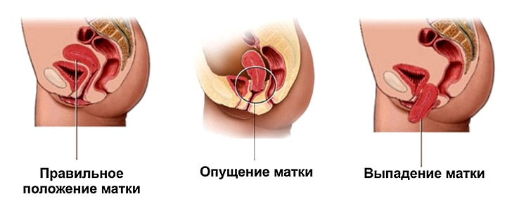 Что означает опущение органов малого таза у женщин