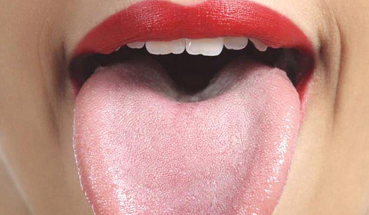 Что такое белый язык?