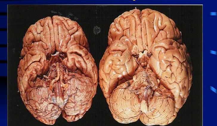 Что такое церебральная атрофия?