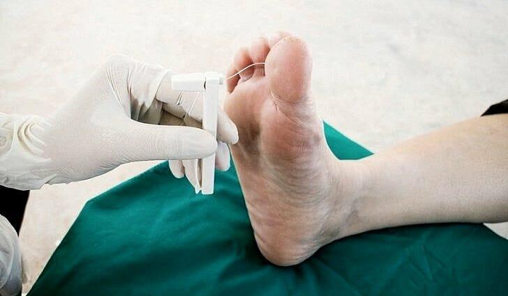 Что такое гангрена ног, симптомы и лечение, фото