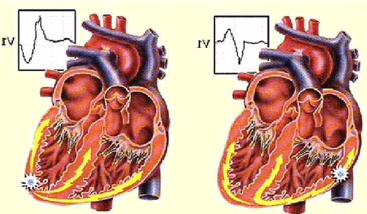Что такое экстрасистолия сердца: симптомы, лечение заболевания