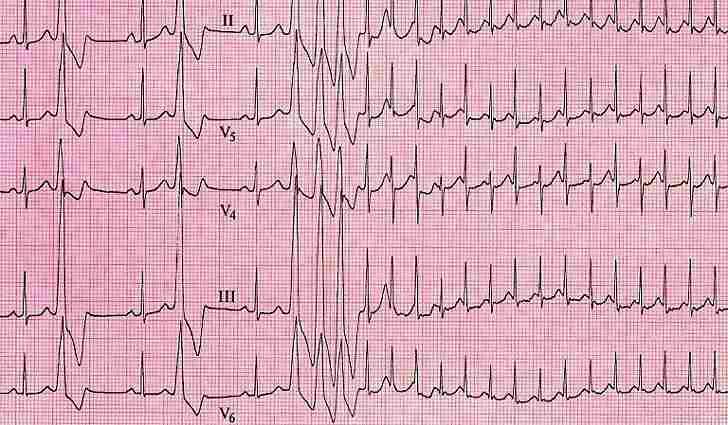 Что такое экстрасистолия сердца