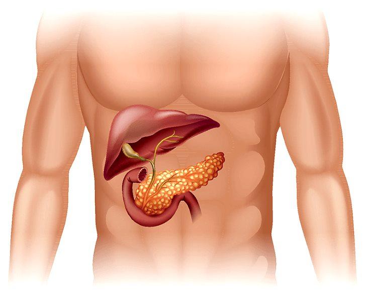 Что такое липоматоз поджелудочной железы