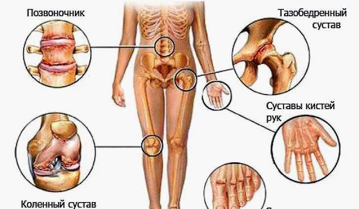 Цикорий укрепляет кости