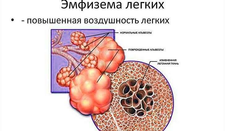 Эмфизема легких: что это такое, симптомы, лечение, причины, гимнастик