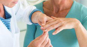 Как лечить псориаз на руках