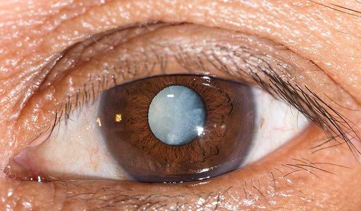 Катаракта: причины, симптомы, лечение и профилактика, народные средства
