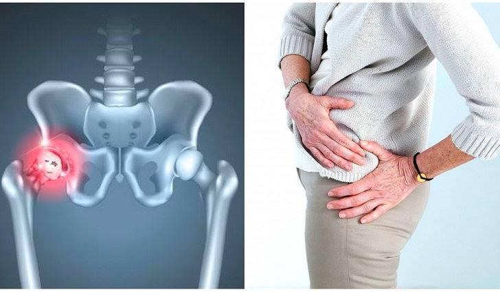 Лечение коксартроза тазобедренного сустава, гимнастика