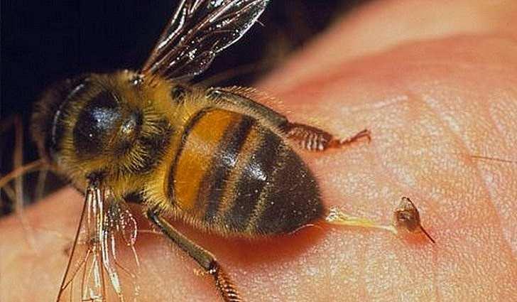 Лук после укуса пчелы или комара