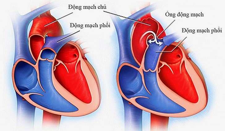 Открытый артериальный проток (ОАП)