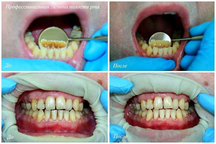 Причины возникновения флюса зуба