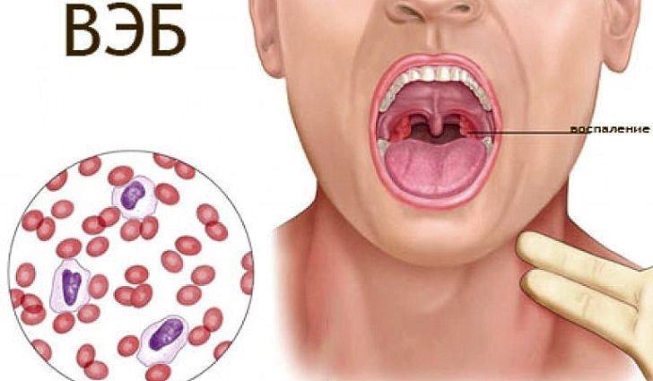 Причины возникновения и симптомы ВЭБ