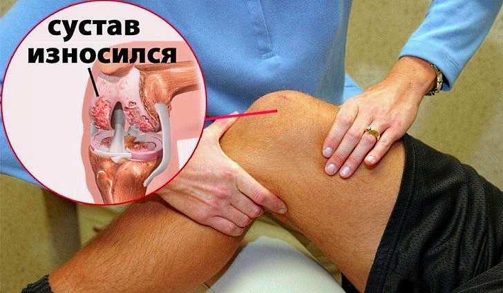 Шиповник помогает предотвратить ревматоидный артрит