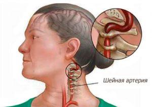 Симптомы недостаточности позвоночной артерии