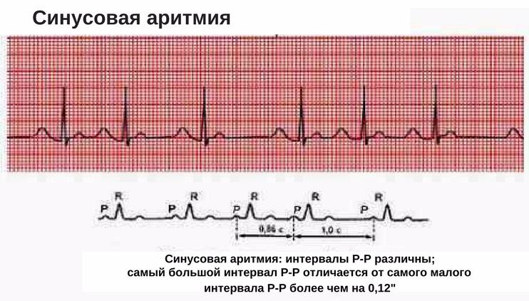 Схема синусовой аритмии