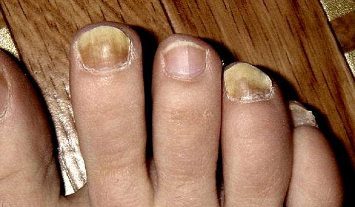 У вас проблемы с ногтями