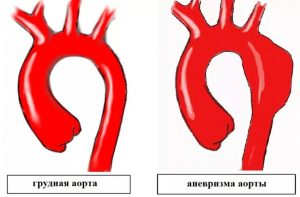 anevrizma aorty