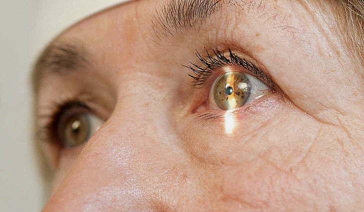 Что это такое глаукома глаза, как лечить
