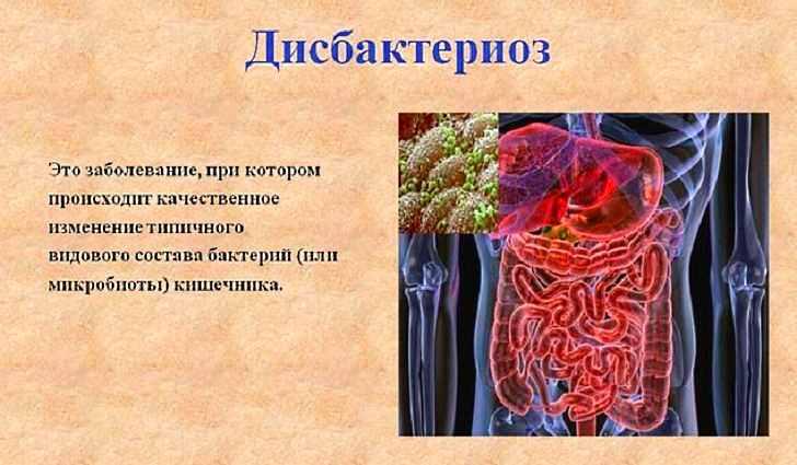 Итак, попробуем разобраться, что же такое дисбактериоз?
