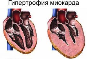 gipertrofija miokarda