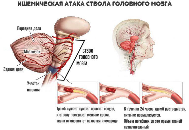 Ишемические, транзиторные атаки