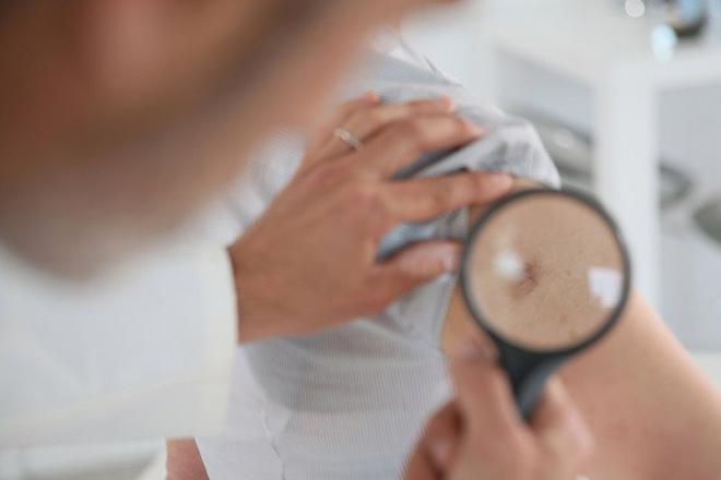 Диагностика экземы на руках