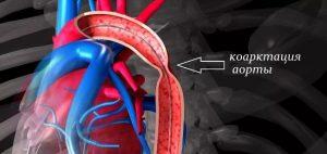 koarktacija aorty