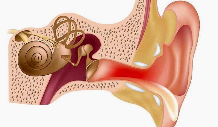 Наружный отит уха у взрослых