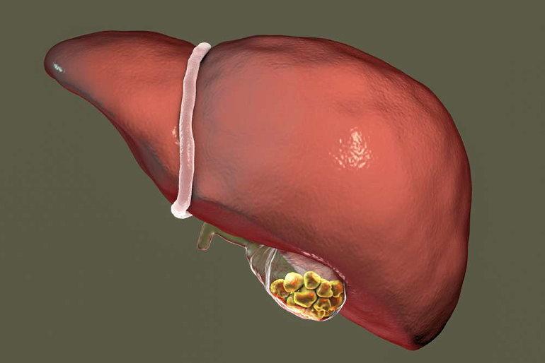 Полипы желчного пузыря симптомы и лечение