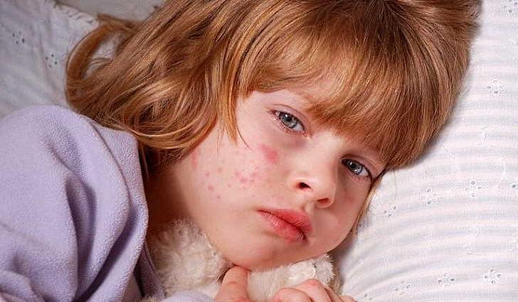 Причины возникновения менингита у детей