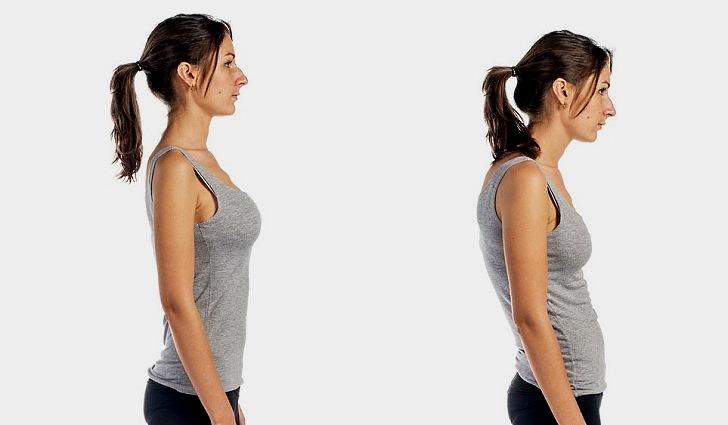Боли в спине возникают при неправильной осанке