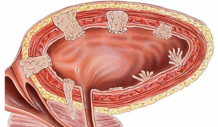 Оказывается, рак мочевого пузыря можно лечить народными средствами