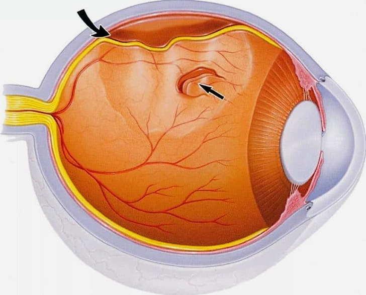 Заболевания сетчатки глаз человека