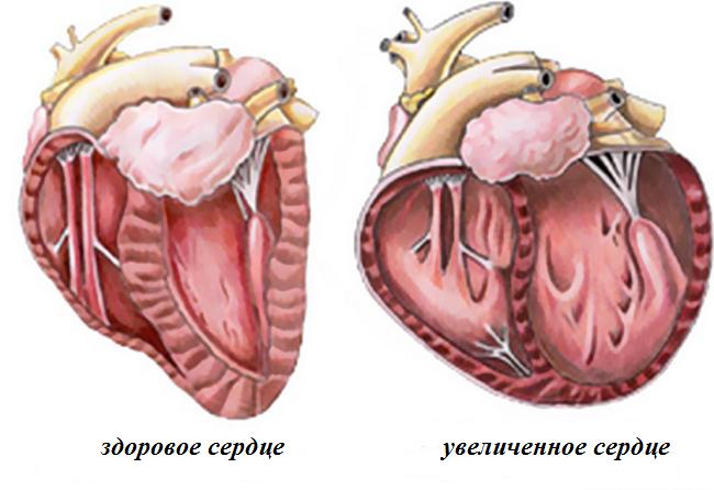 zdorovoe i uvelichennoe serdce